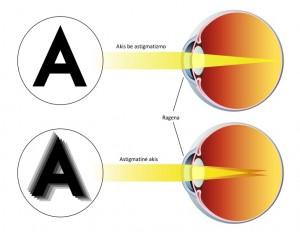 astigmatizmas
